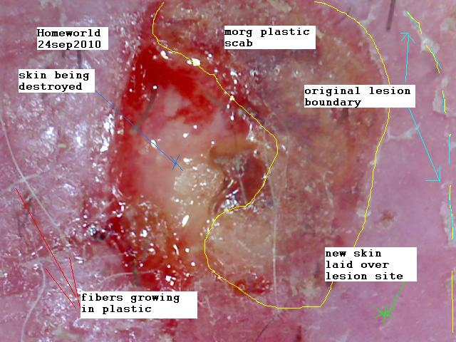 anatomy of a Morgellons lesion