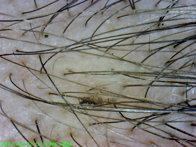 Morgellons fibers in hair