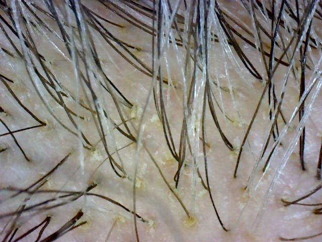 Morgellons hair damage