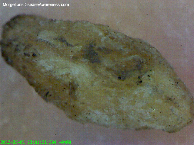 Morgellons Disease Awareness - Morgellons particles and