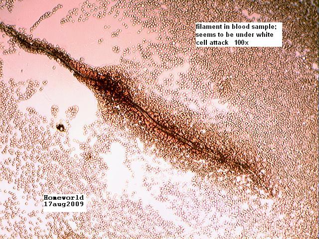 Morgellons fibers in blood