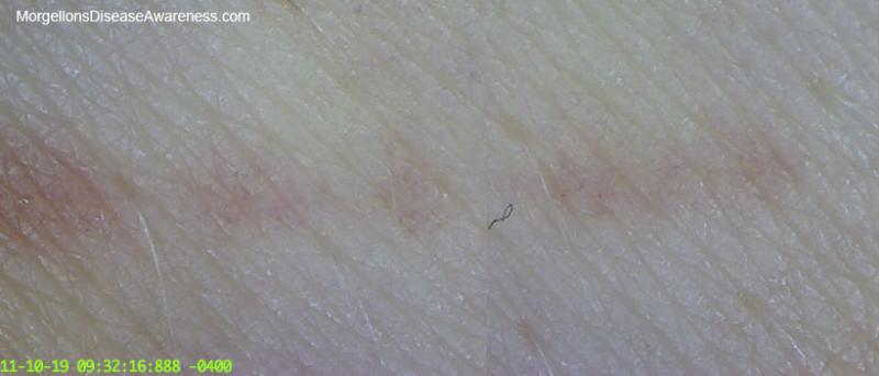 Morgellons tracks